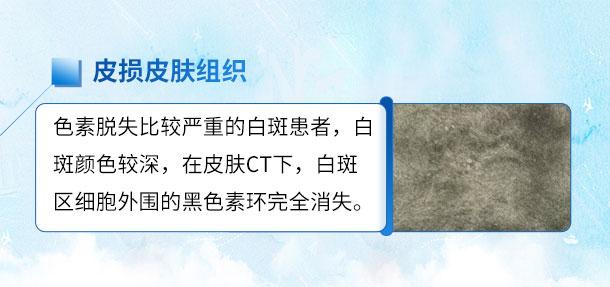 北京专家来啦!!特邀北京白癜风专家――苏有明教授将于4月5日来院会诊