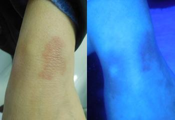 张姐手腕原患处部位黑色素恢复正常,恢复健康肤色
